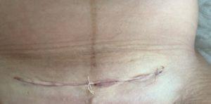cicatrice-césarienne