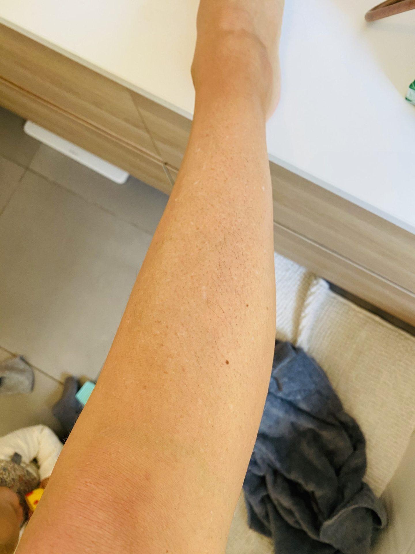 clinique-del-mar-epilation-definitive-7