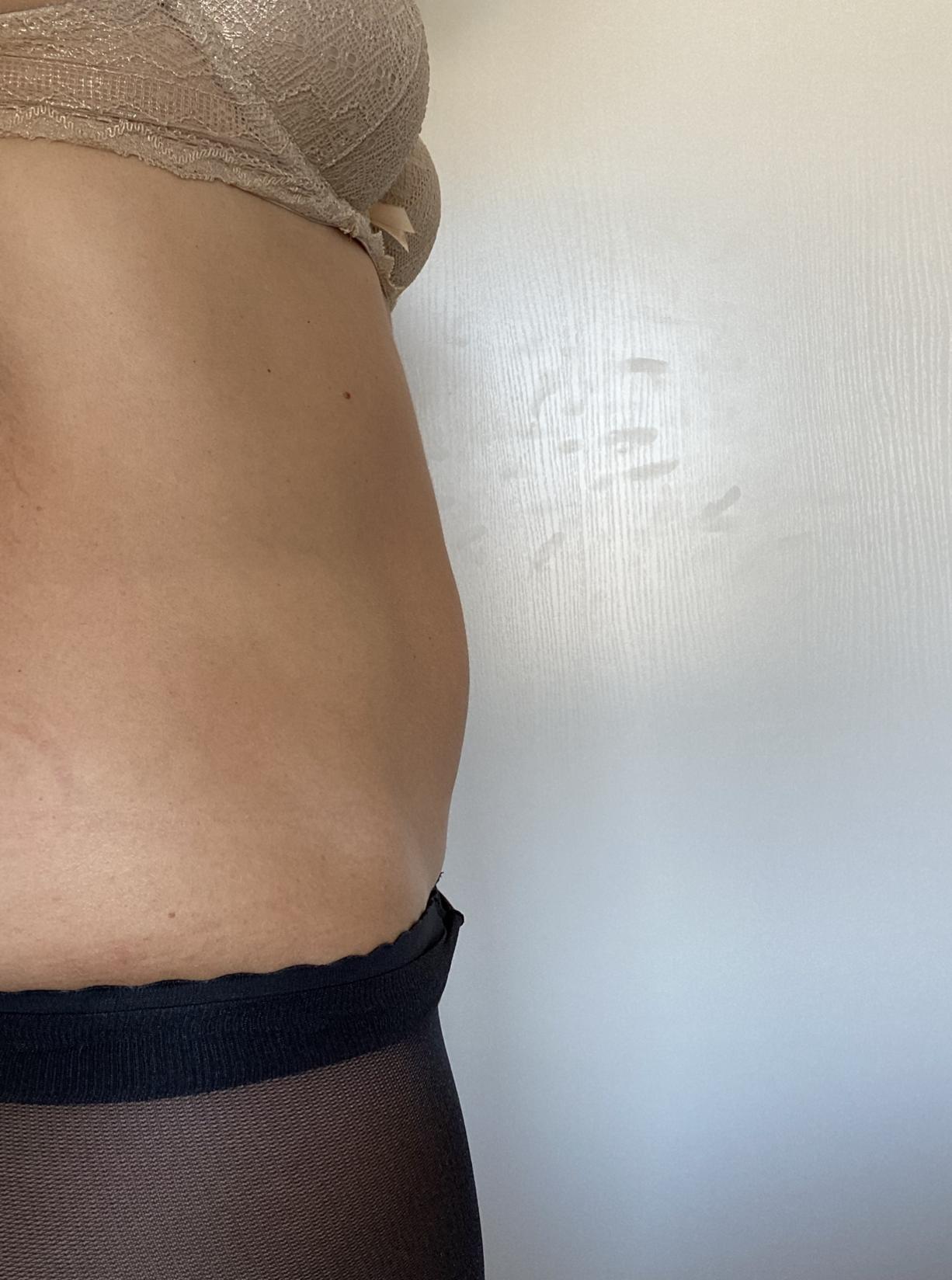 reeducation-abdominale-post-partum-2